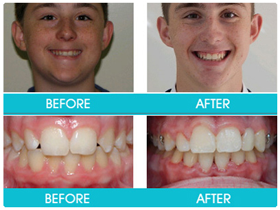 Verifiable CPD paper: Orthodontics Part 10: Impacted teeth
